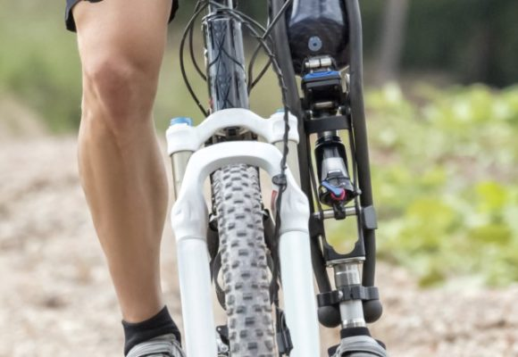 Od czego zależy cena protezy ręki i nogi