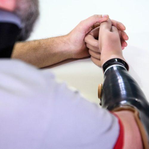 Czy fakt, że noszę protezę skazuje mnie na mniejsze osiągi w sporcie?